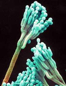 external image penicillium-roqueforti.2.jpg